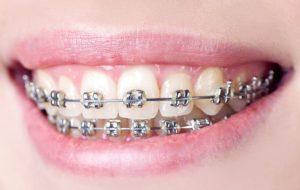 Dental Klinik Dokter Spesialis Kawat Gigi,Orthodonti,Behel,Implan,Gigi Palsu,Veneer Semarang